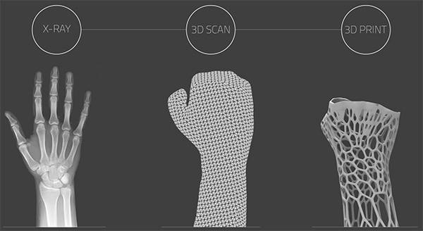 Lastre ai raggi X, scansione 3D dell'arto e stampa 3D del gesso: ecco i tre step necessari