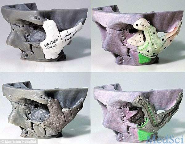 La protesi stampata in 3D e impiantata nel viso di Stephen Power