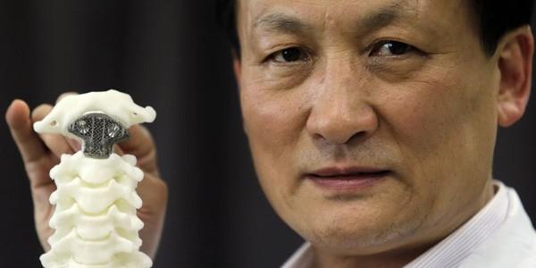 Il dottor Liu Zhongjun e la vertebra stampata in 3D utilizzata nell'intervento