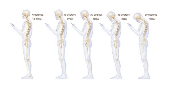 Studio sul collegamento tra uso del telefonino e mal di schiena