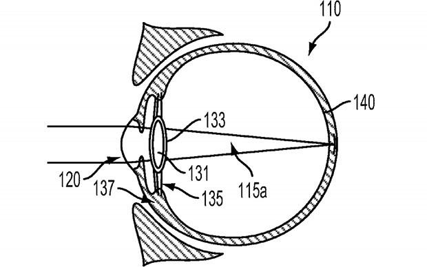 """Un'immagine dal brevetto """"Intra-Ocular Device"""" depositato da Google"""