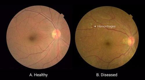 Esempi di fotografie della retina analizzate per questo tipo di patologia: a sinistra un occhio sano, a destra uno che presenta lesioni