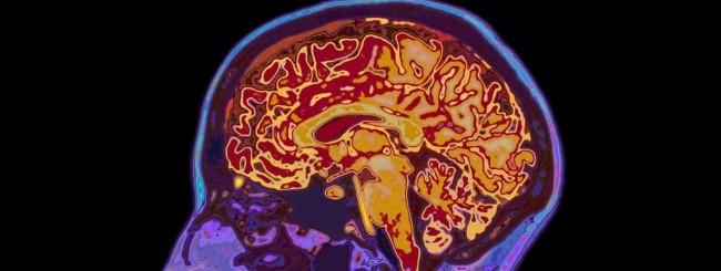 Cervello - MRI