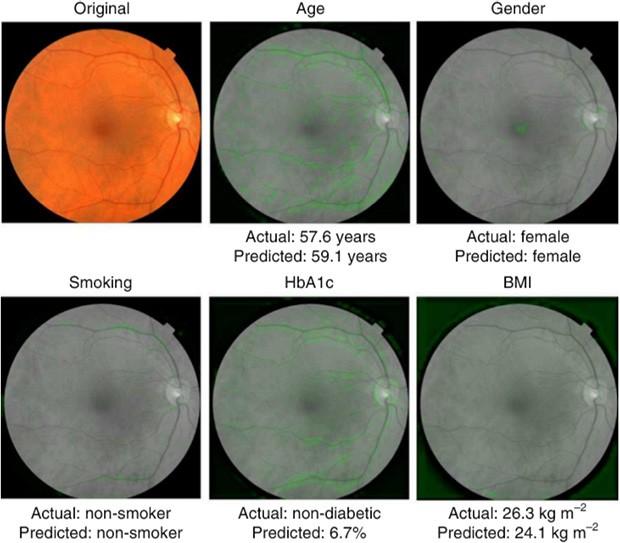 Le immagini della retina analizzate dal sistema di machine